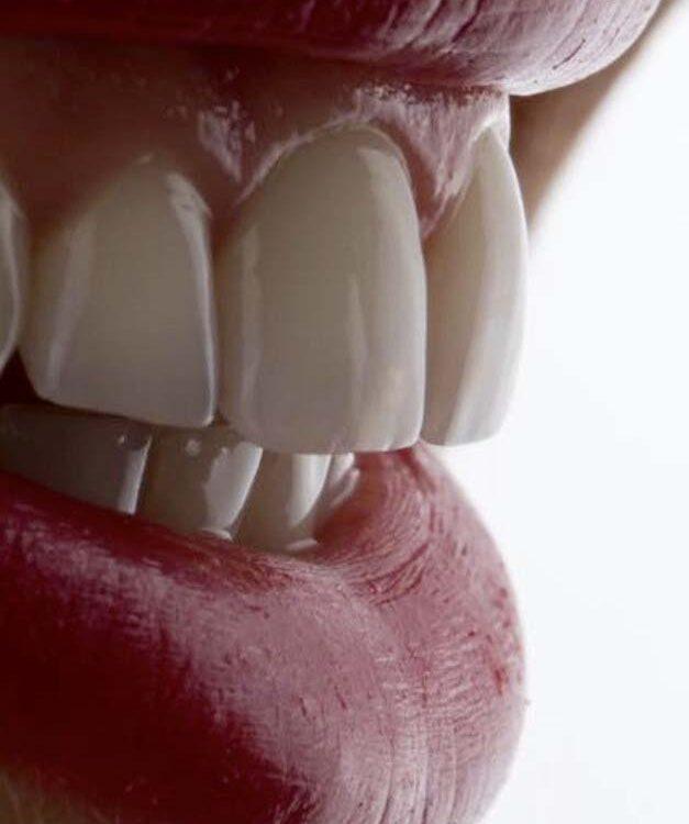 Esthetische tandheelkunde & bleaching - Dental Esthetics Sterrebeek