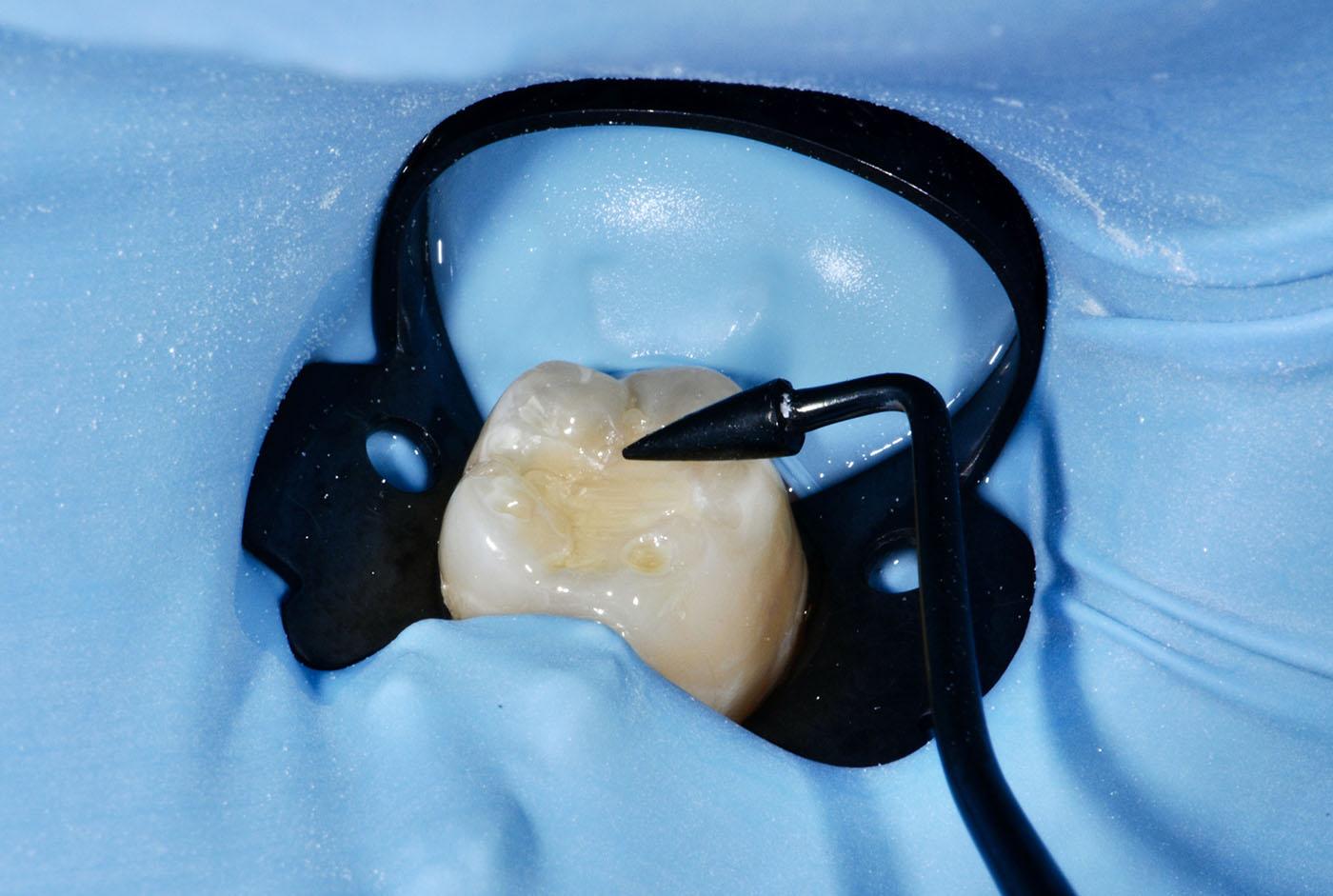 algemene tandheelkunde - tandvullingen - wortelkanaalbehandeling